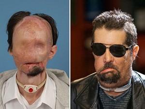 Fé Permite Homem Ter Transplante Total de Cara com Sucesso